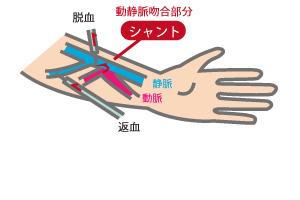 動脈 手首